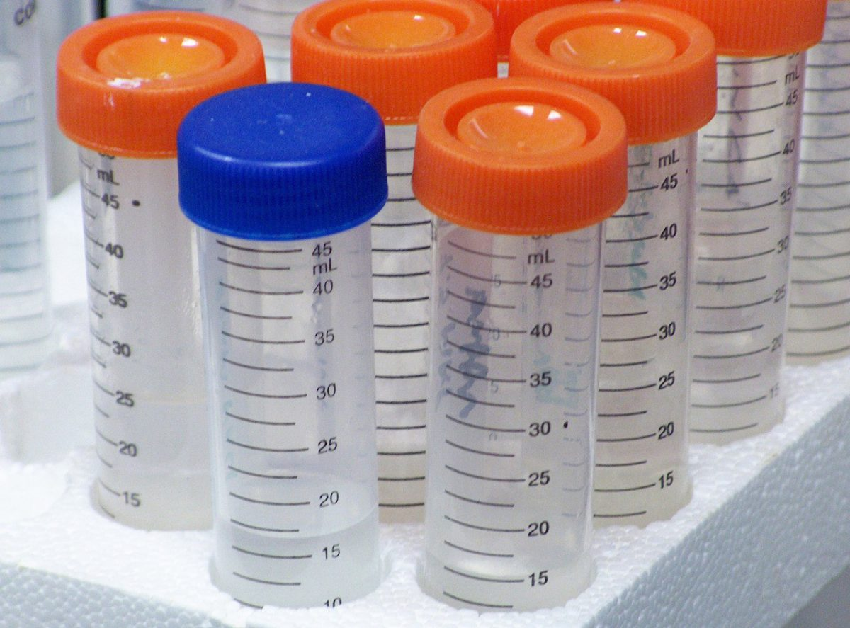 Badania przed rozpoczęciem przyjmowania tabletek antykoncepcyjnych