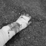 Zabiegi fizjoterapeutyczne w złamaniach